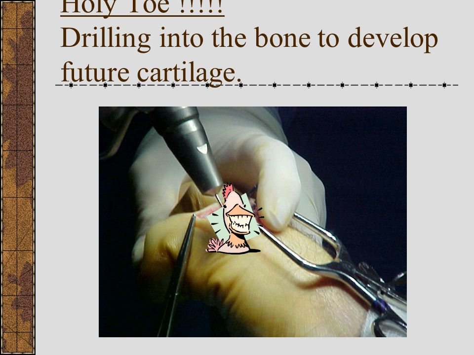 Holy Toe !!!!! Drilling into the bone to develop future cartilage.