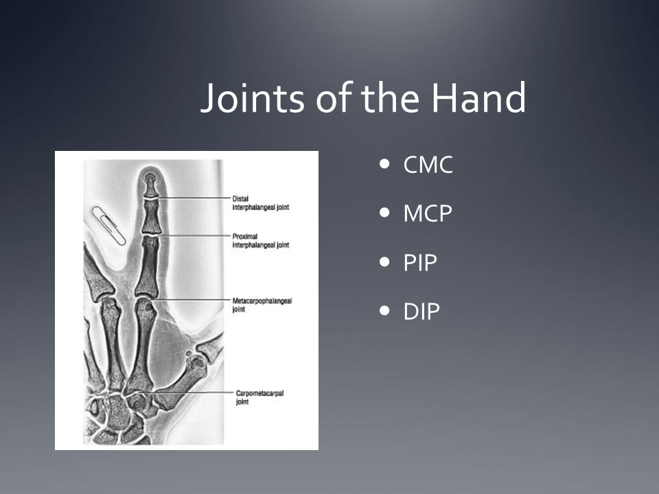 Joints of the Hand CMC MCP PIP DIP