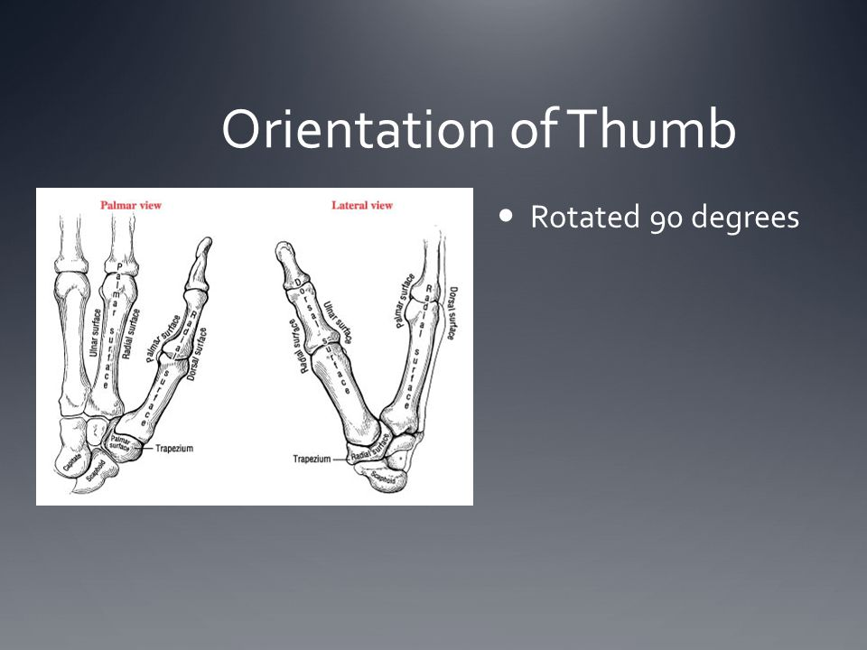 Orientation of Thumb Rotated 90 degrees