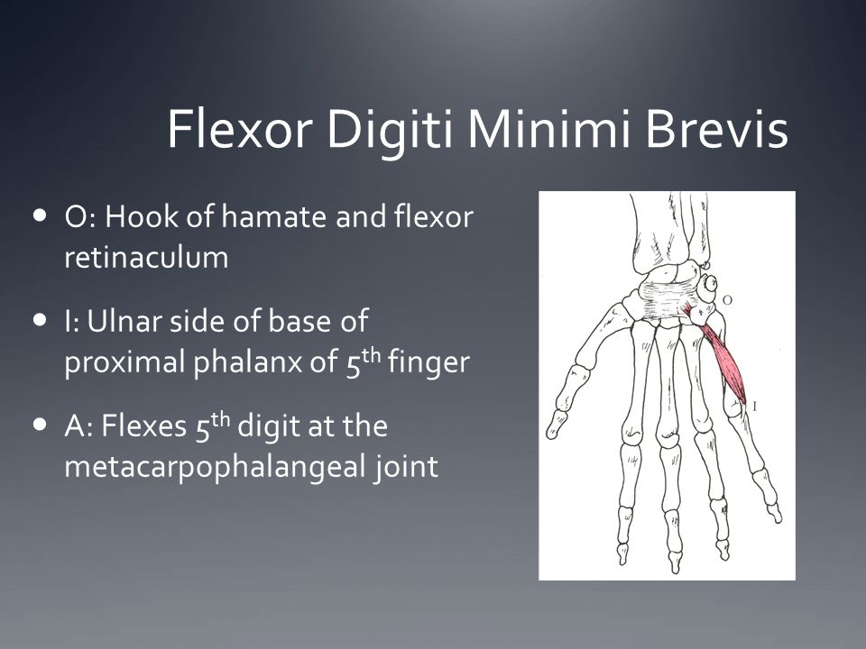 Flexor Digiti Minimi Brevis