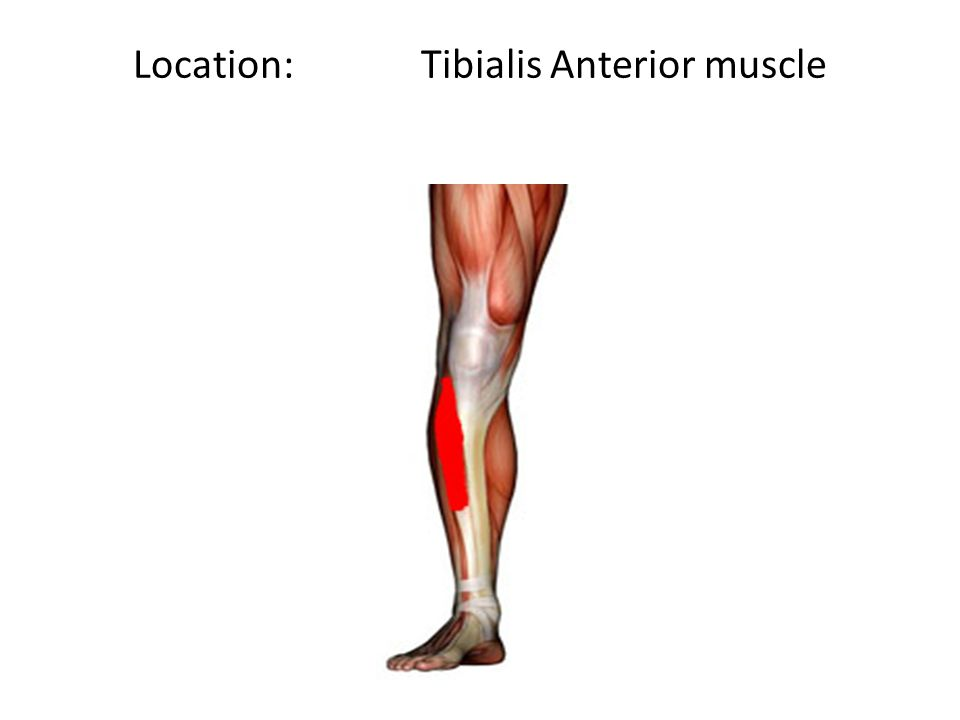 Location: Tibialis Anterior muscle