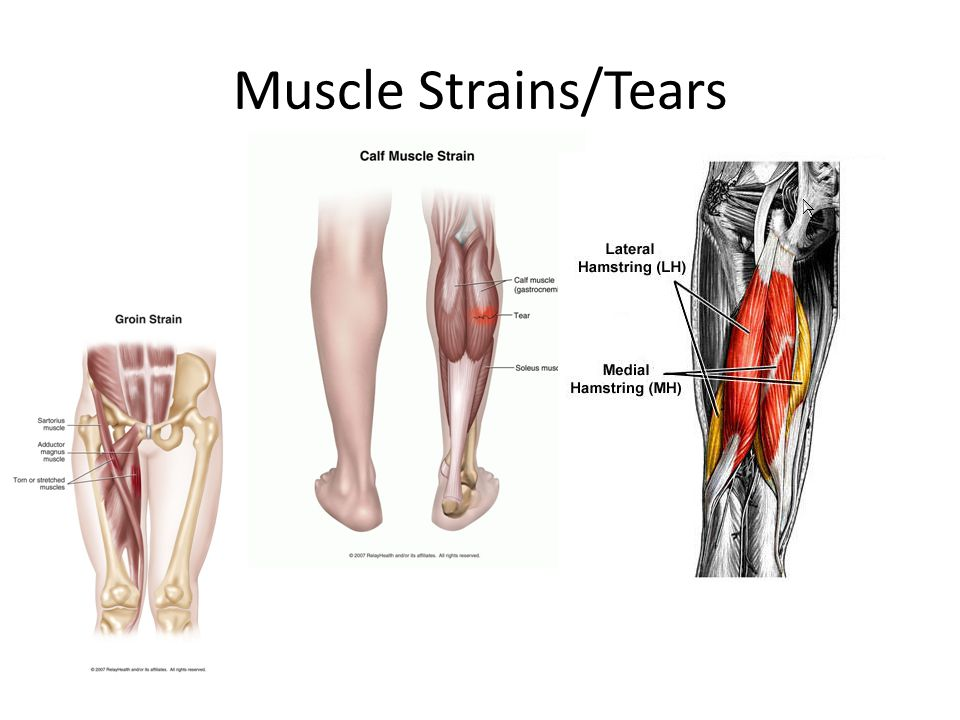 Muscle Strains/Tears