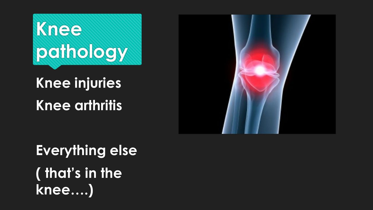 Knee pathology Knee injuries Knee arthritis Everything else