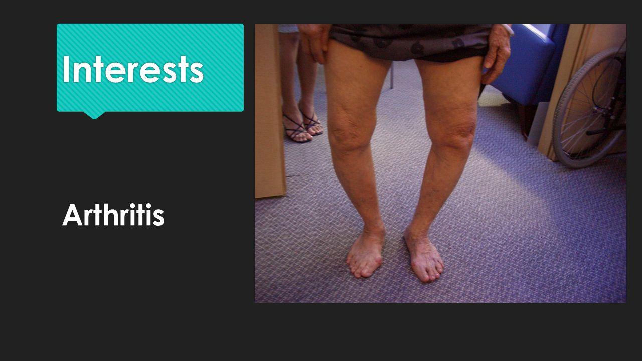 Interests Arthritis
