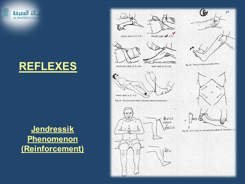 REFLEXES Jendressik Phenomenon (Reinforcement)
