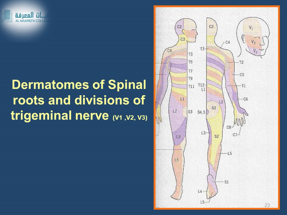Dermatomes of Spinal roots and divisions of trigeminal nerve (V1 ,V2, V3)