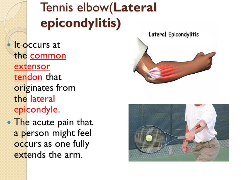 Tennis elbow(Lateral epicondylitis)