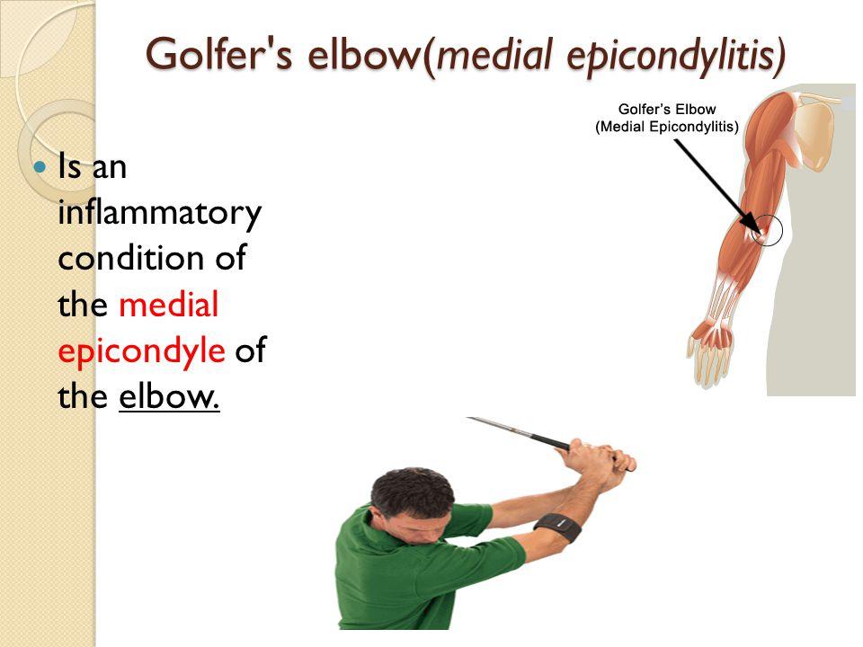 Golfer s elbow(medial epicondylitis)