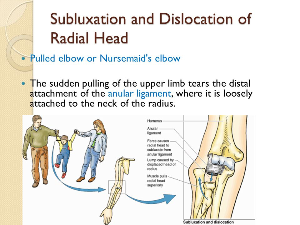 Subluxation and Dislocation of Radial Head