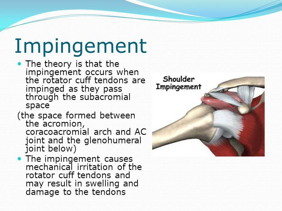 Impingement The theory is that the impingement occurs when the rotator cuff tendons are impinged as they pass through the subacromial space.