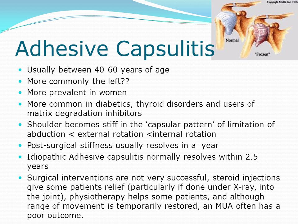 Adhesive Capsulitis Usually between 40-60 years of age