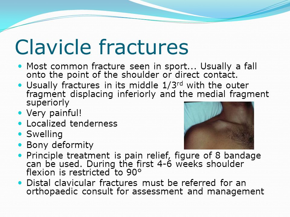 Clavicle fractures Most common fracture seen in sport... Usually a fall onto the point of the shoulder or direct contact.