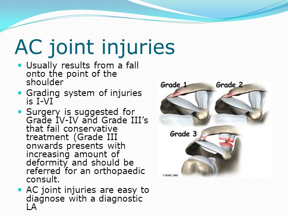 AC joint injuries Usually results from a fall onto the point of the shoulder. Grading system of injuries is I-VI.