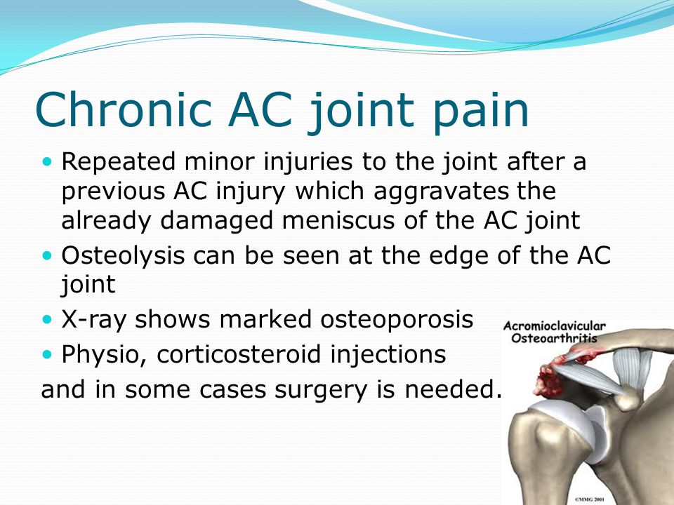 Chronic AC joint pain Repeated minor injuries to the joint after a previous AC injury which aggravates the already damaged meniscus of the AC joint.