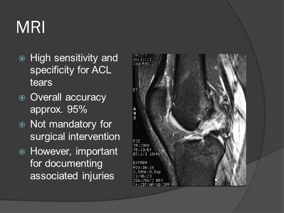 MRI High sensitivity and specificity for ACL tears