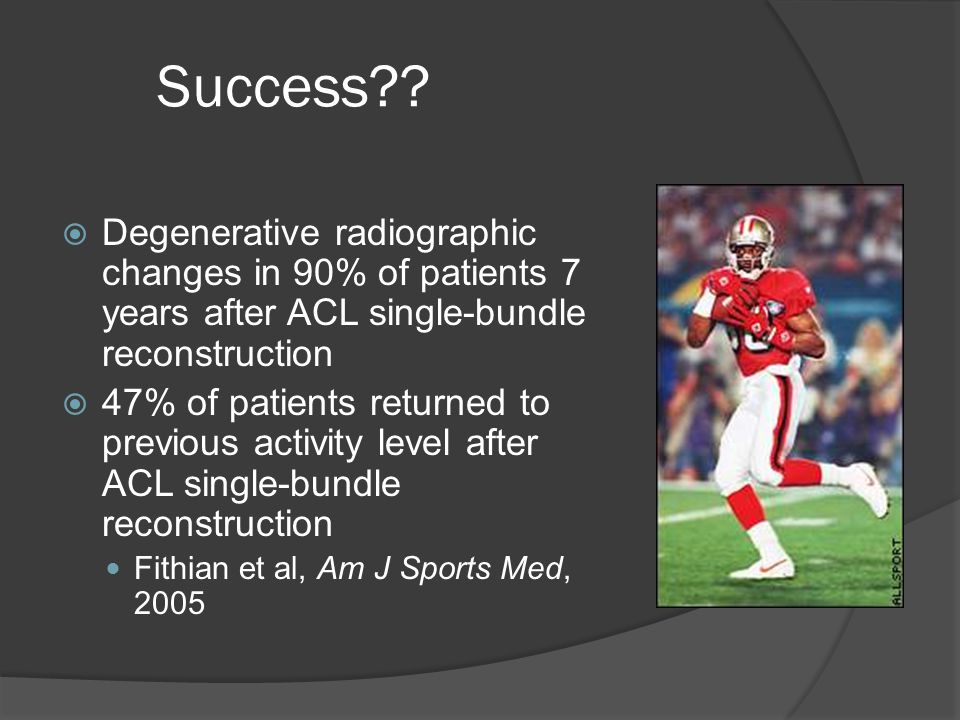 Success Degenerative radiographic changes in 90% of patients 7 years after ACL single-bundle reconstruction.