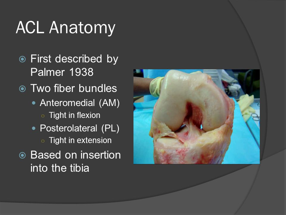 ACL Anatomy First described by Palmer 1938 Two fiber bundles