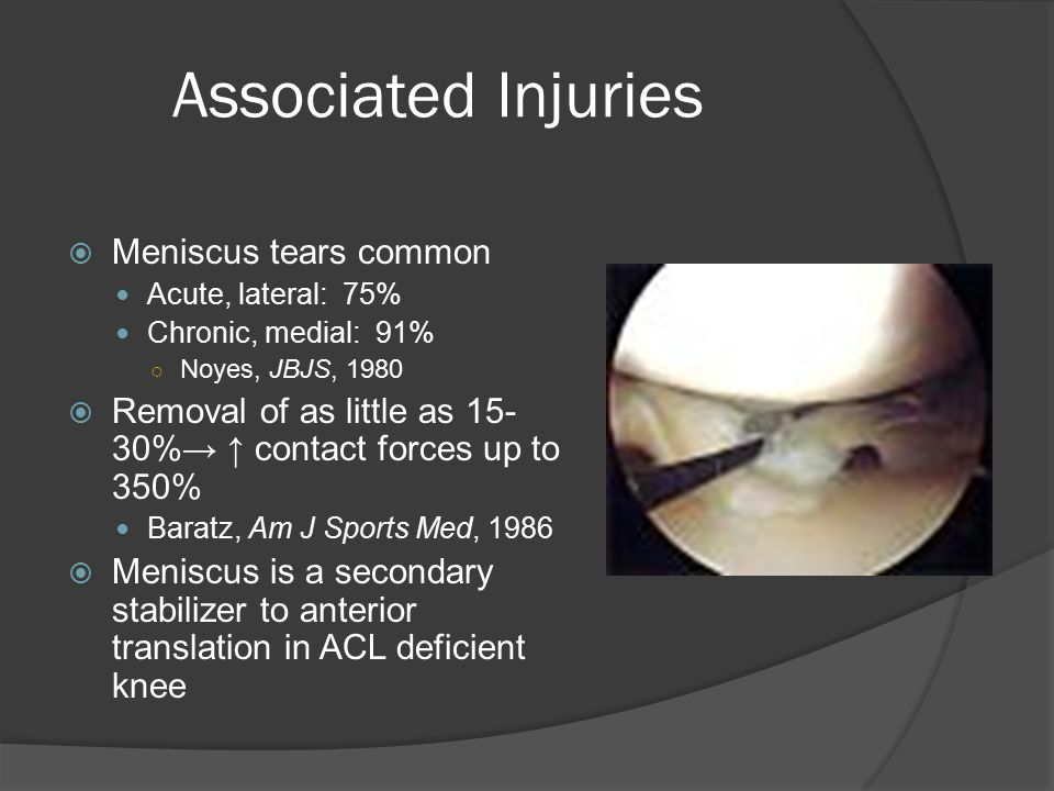 Associated Injuries Meniscus tears common