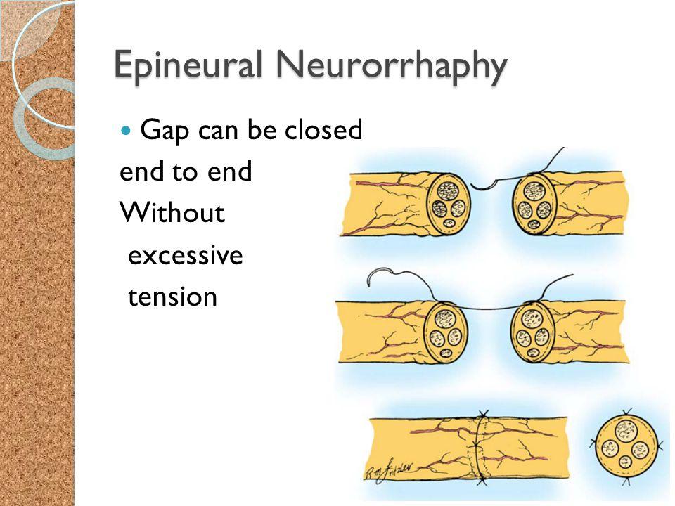 Epineural Neurorrhaphy