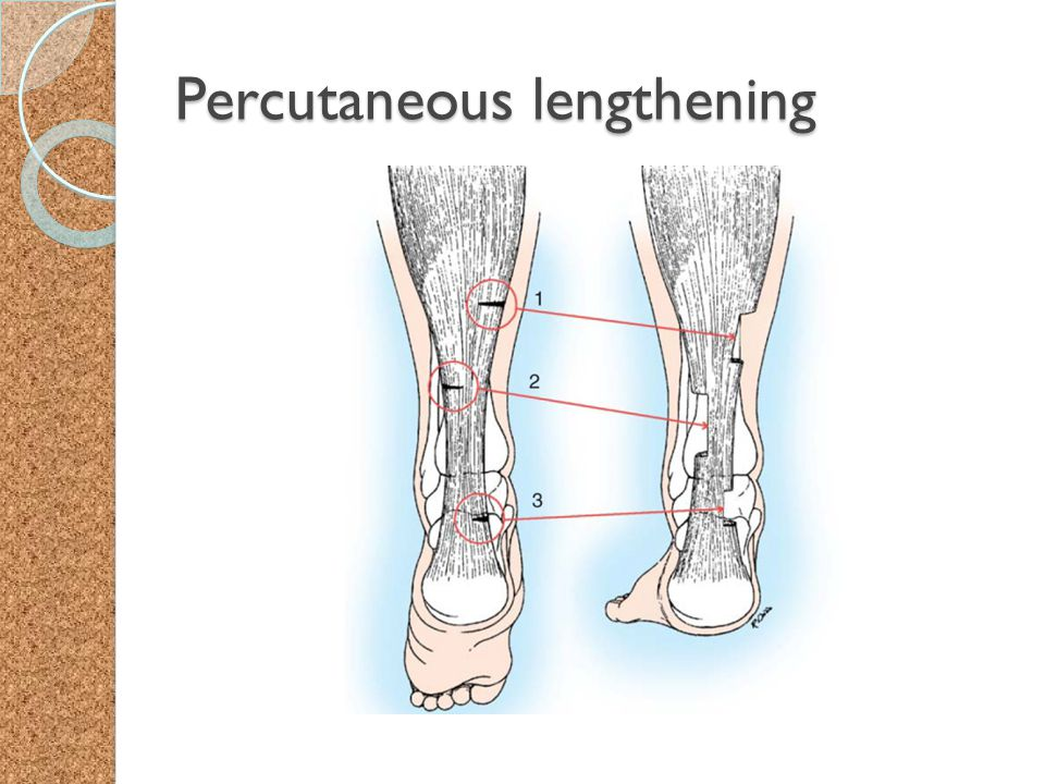 Percutaneous lengthening