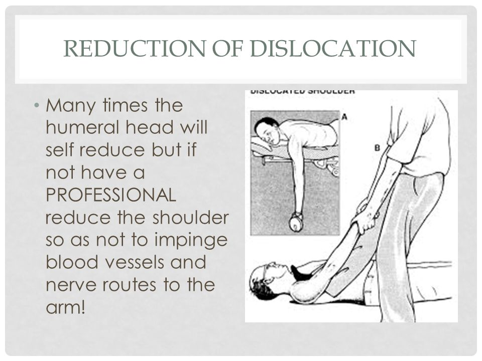 Reduction of Dislocation
