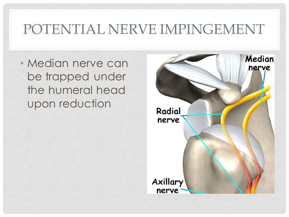 Potential nerve impingement