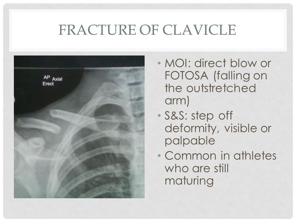 Fracture of Clavicle MOI: direct blow or FOTOSA (falling on the outstretched arm) S&S: step off deformity, visible or palpable.