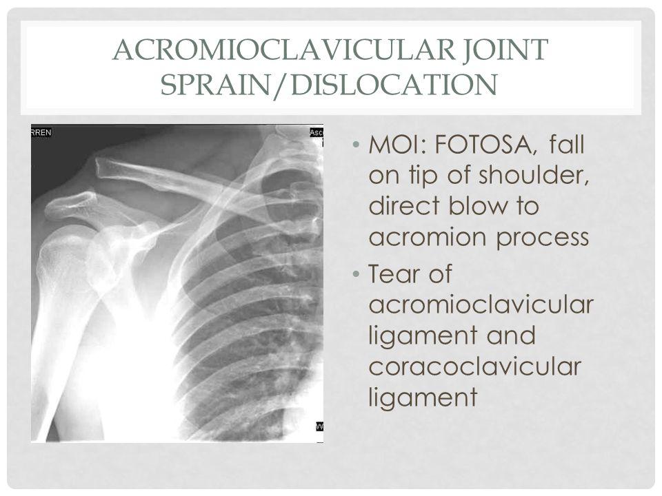 Acromioclavicular Joint Sprain/Dislocation