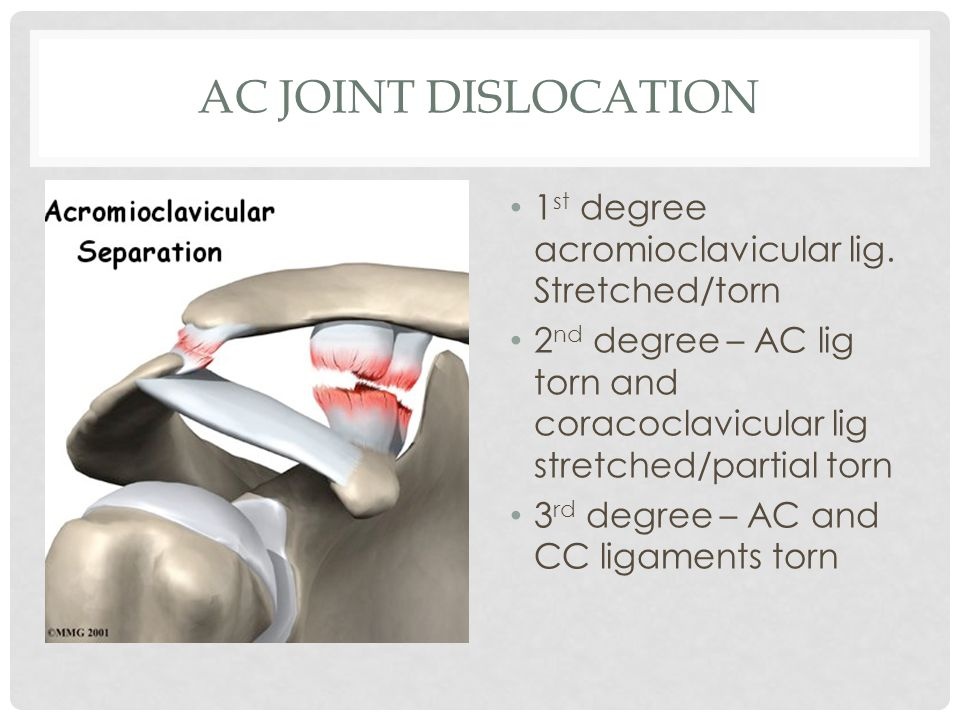 AC joint Dislocation 1st degree acromioclavicular lig. Stretched/torn
