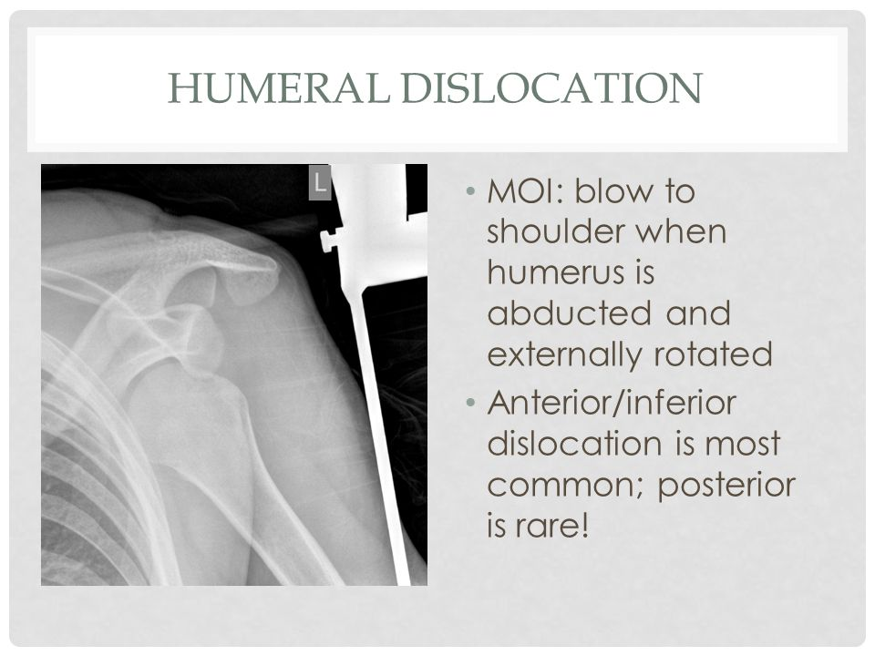 Humeral Dislocation MOI: blow to shoulder when humerus is abducted and externally rotated.