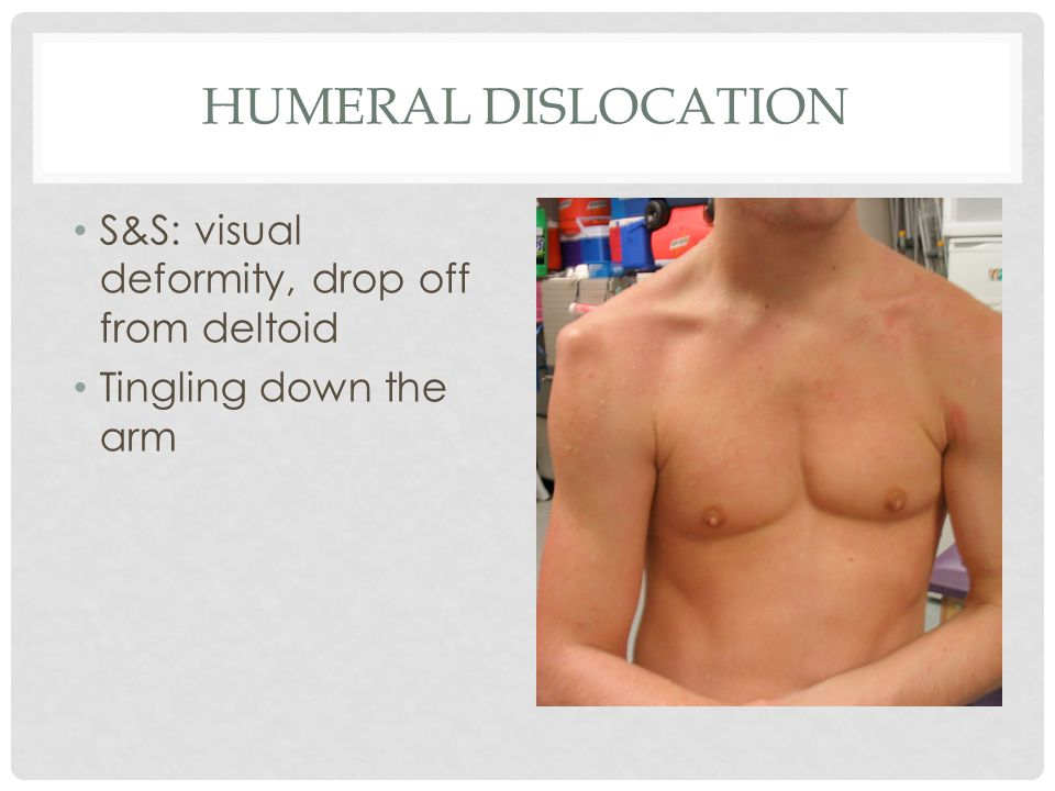 Humeral dislocation S&S: visual deformity, drop off from deltoid