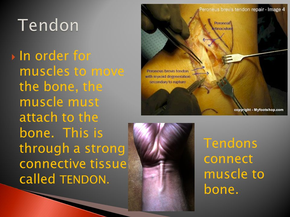 Tendon In order for muscles to move the bone, the muscle must attach to the bone. This is through a strong connective tissue called TENDON.