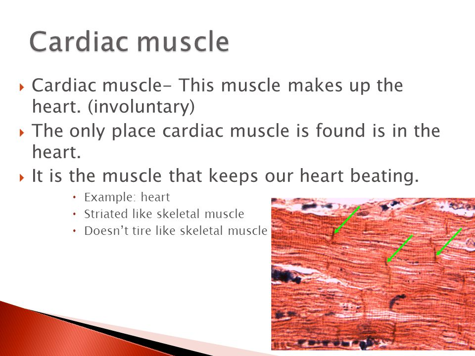 Cardiac muscle Cardiac muscle- This muscle makes up the heart. (involuntary) The only place cardiac muscle is found is in the heart.