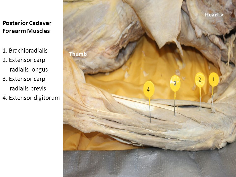 Posterior Cadaver Forearm Muscles