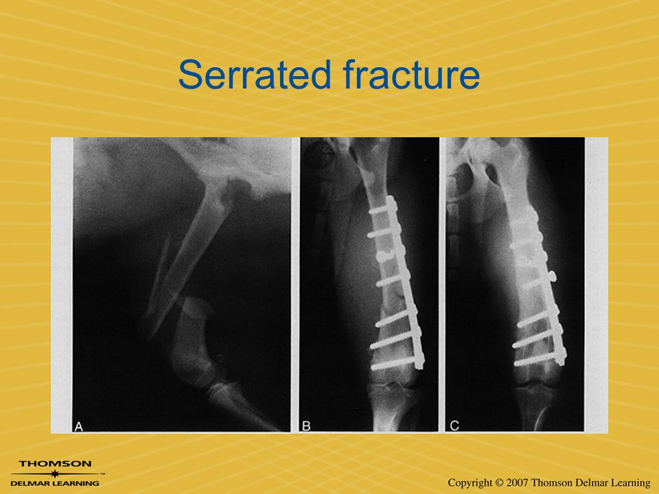Serrated fracture
