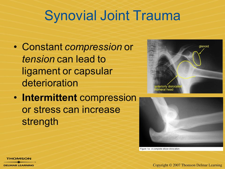 Synovial Joint Trauma Constant compression or tension can lead to ligament or capsular deterioration.