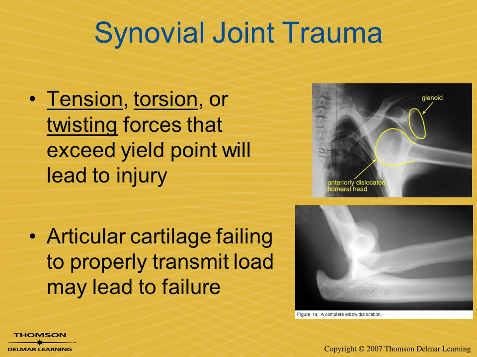Synovial Joint Trauma Tension, torsion, or twisting forces that exceed yield point will lead to injury.