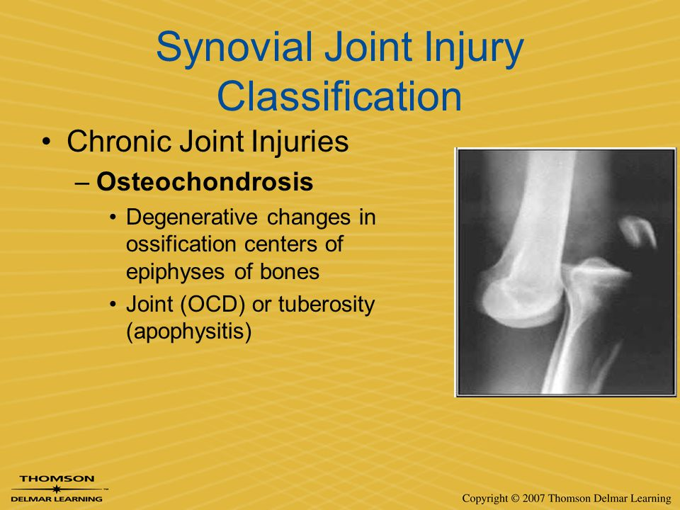 Synovial Joint Injury Classification