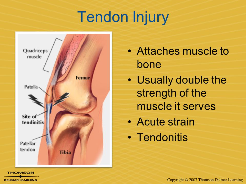 Tendon Injury Attaches muscle to bone