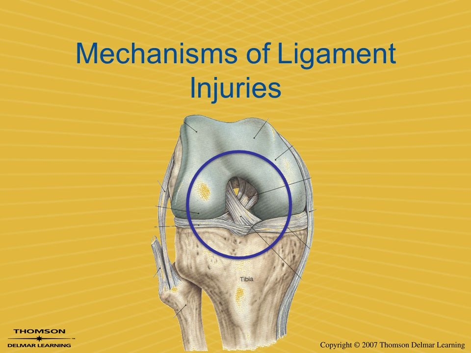 Mechanisms of Ligament Injuries