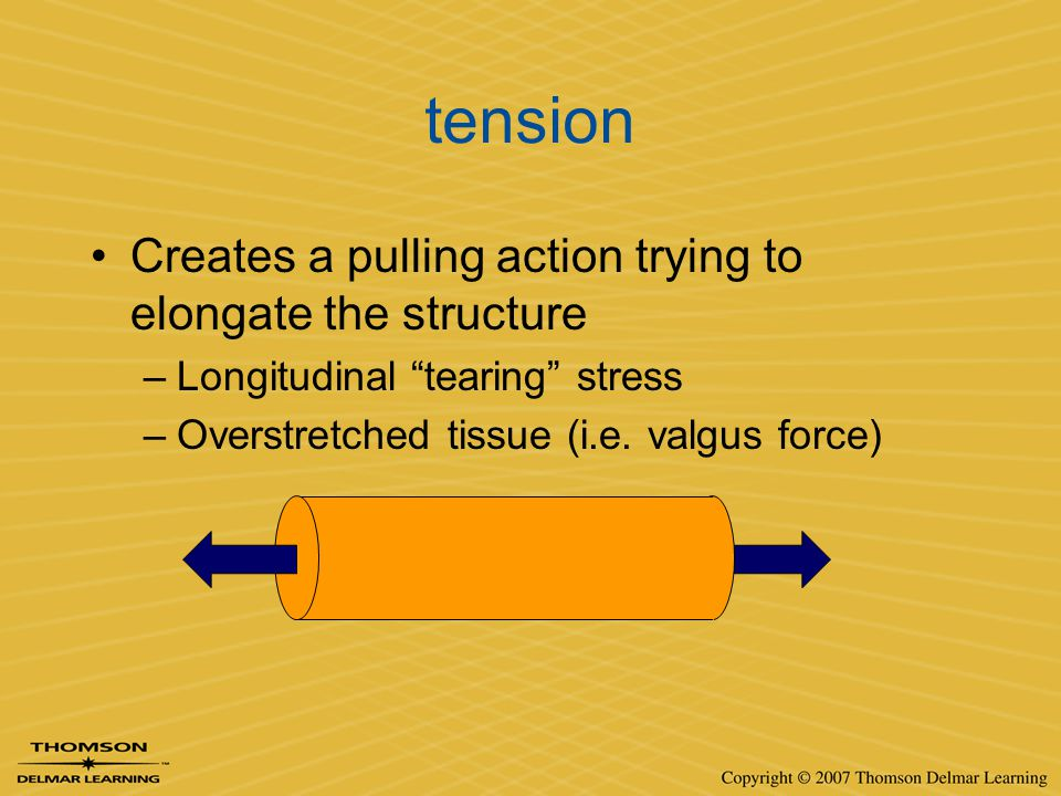 tension Creates a pulling action trying to elongate the structure