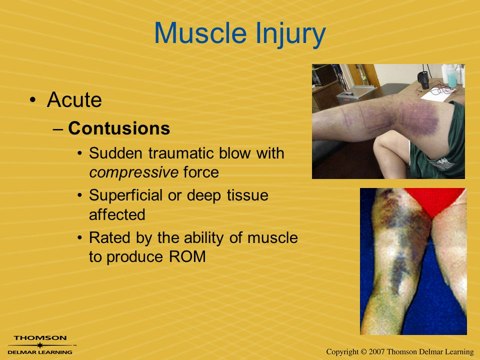 Muscle Injury Acute Contusions