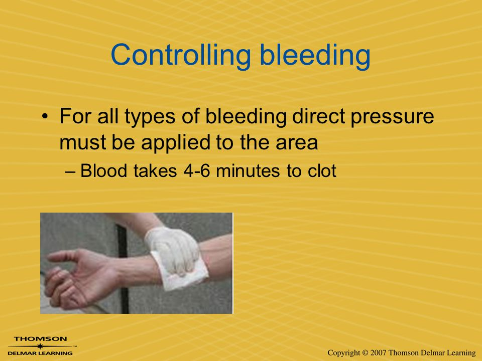 Controlling bleeding For all types of bleeding direct pressure must be applied to the area.