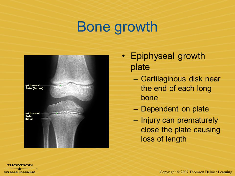 Bone growth Epiphyseal growth plate