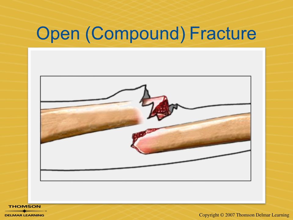 Open (Compound) Fracture