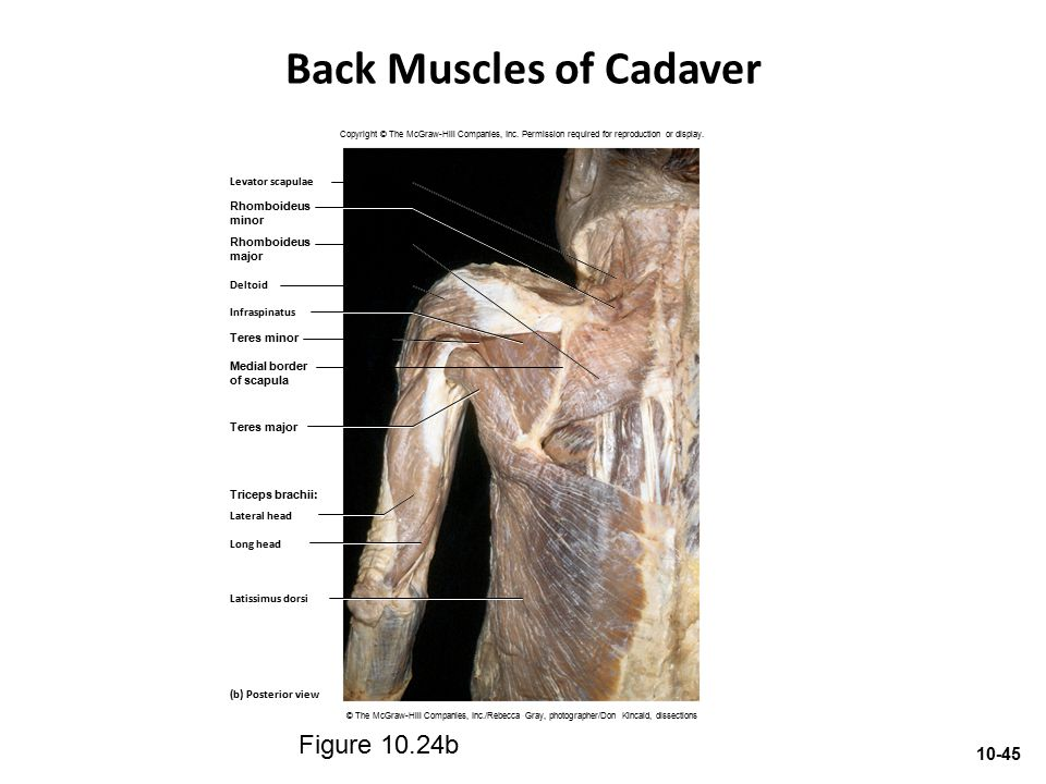 Back Muscles of Cadaver