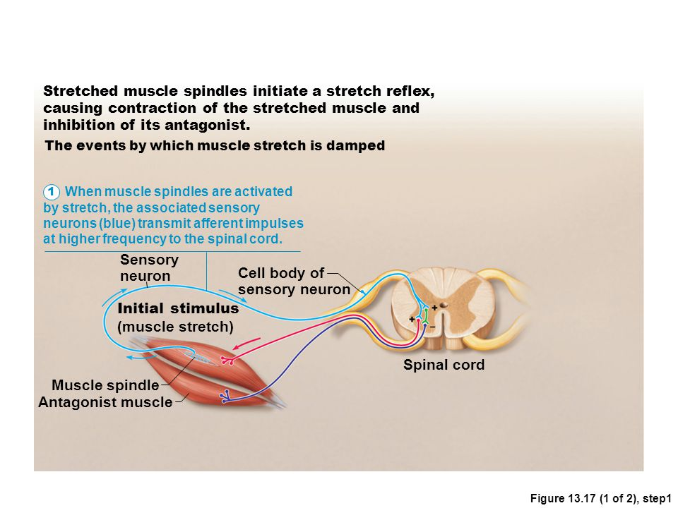 Cell body of sensory neuron