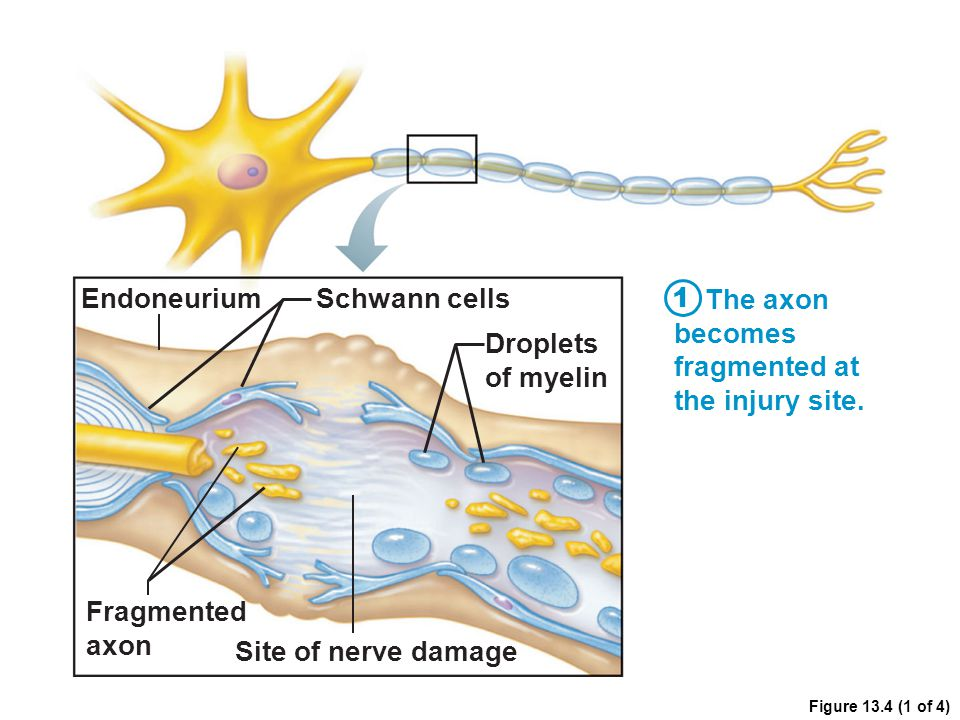Endoneurium Schwann cells The axon becomes fragmented at