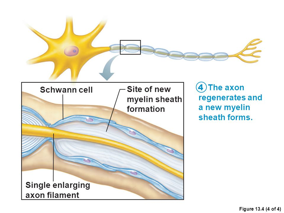 The axon Schwann cell Site of new regenerates and myelin sheath