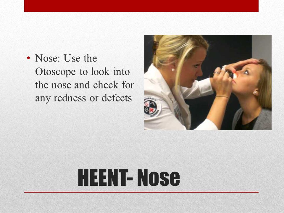 Nose: Use the Otoscope to look into the nose and check for any redness or defects